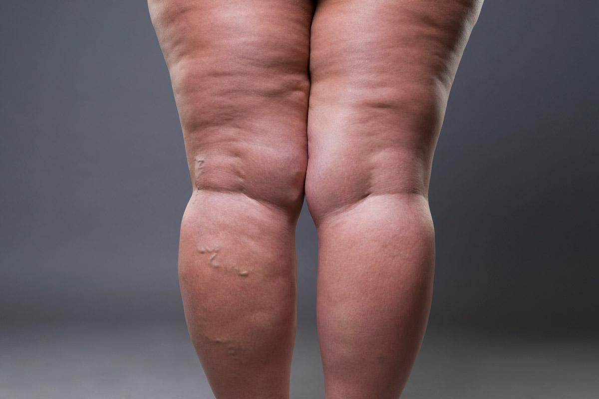 Lipedema-hinchazon-piernas